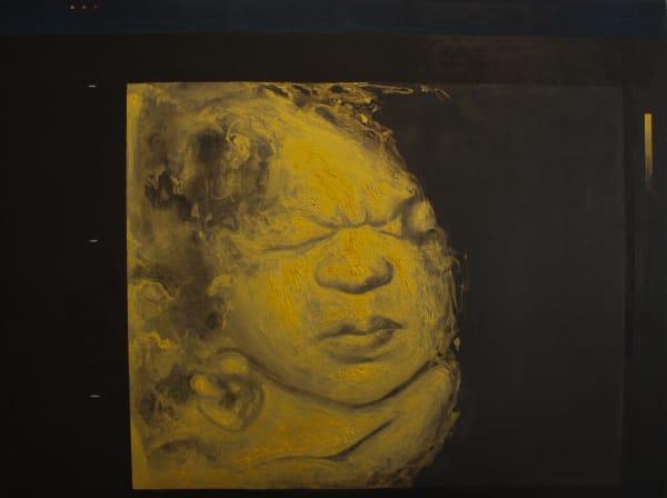 Golden Fetus