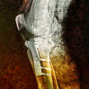 From the Char (Mending Knee Series) by Michael Endicott